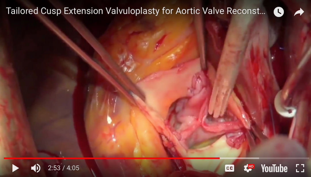 Cusp extension aortic valvuloplasty
