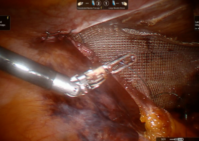 Redo Robotic TAPP bilateral inguinal hernia repair, after Da Vinci prostatectomy